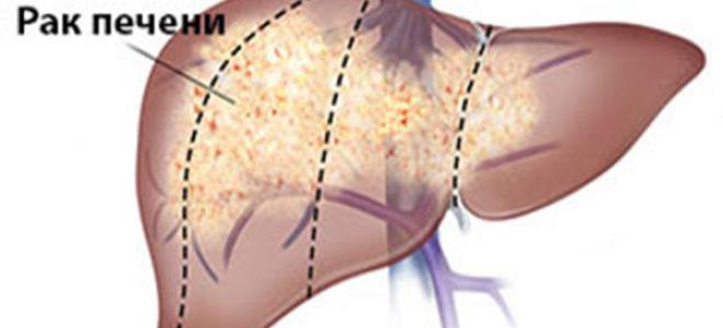 Метастазы в печени как вторичный рак — 50/50 или без шансов?