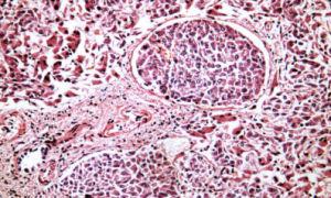 Раковое поражение печени: симптомы, причины, дигностика