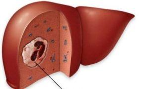 Как происходит лечение рака печени и возможно ли оно