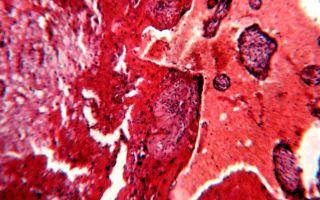 Серьезное осложнение цирроза печени в виде кровотечения: механизм возникновения, симптомы, лечение и профилактические мероприятия по предотвращению