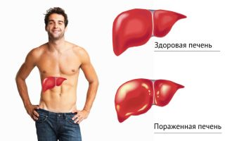 Наиболее часто встречаемые болезни печени у человека