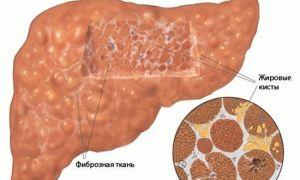 Насколько опасен фиброз печени?