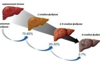 Какие существуют стадии цирроза печени