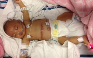Как лечить цирроз печени у детей