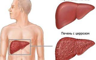 Бывает ли температура при циррозе печени