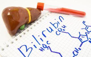 Гипербилирубинемия: насколько это страшно?