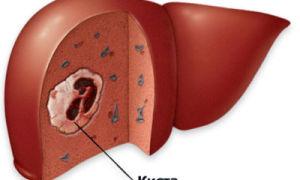 Киста печени — рак или нет? Как лечить, нужна ли срочная операция?