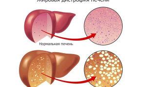 Что такое жировая дистрофия печени, ее симптомы и лечение