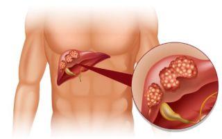 Первичный и вторичный билиарный цирроз печени