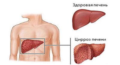 Цирроз печени классификация