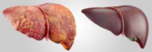 Инфильтративные патологии печени
