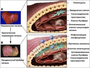 фиброз печени стадии