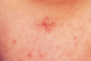 сосудистые «звёздочки» на груди и плечах
